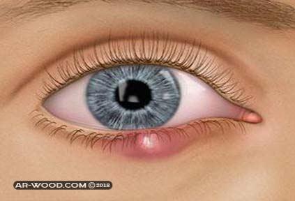 اسباب ظهور حبوب داخل جفن العين